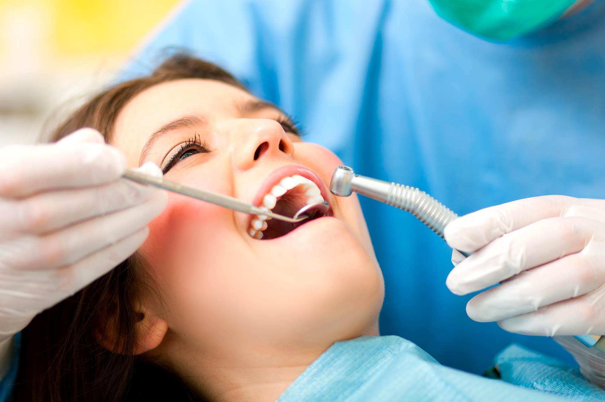 blanqueamiento dental en leon