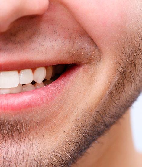 dientes blancos leon