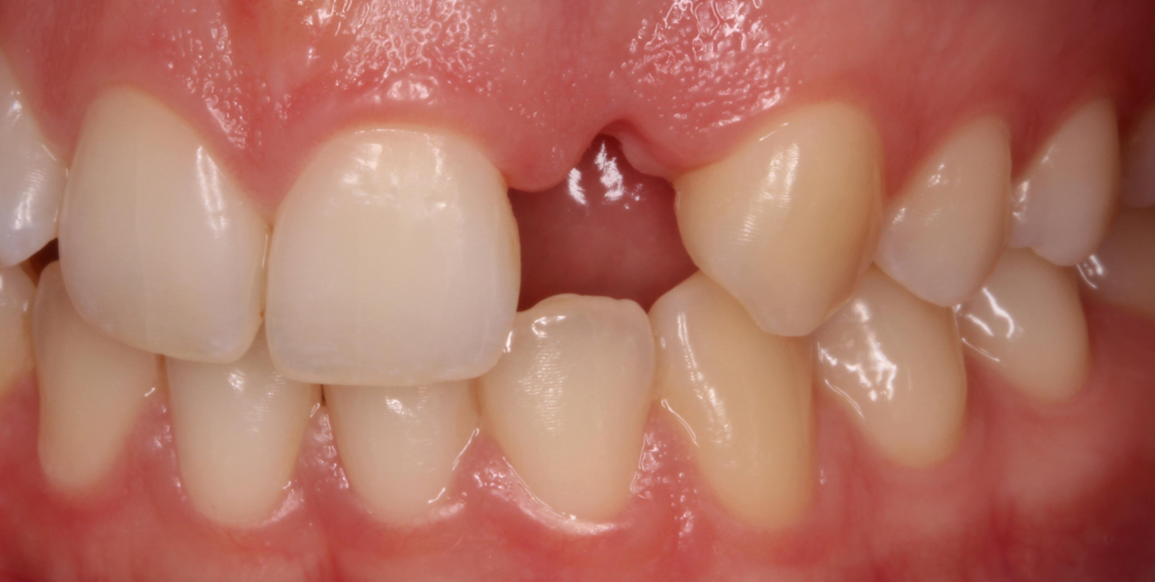 ausencia de dientes