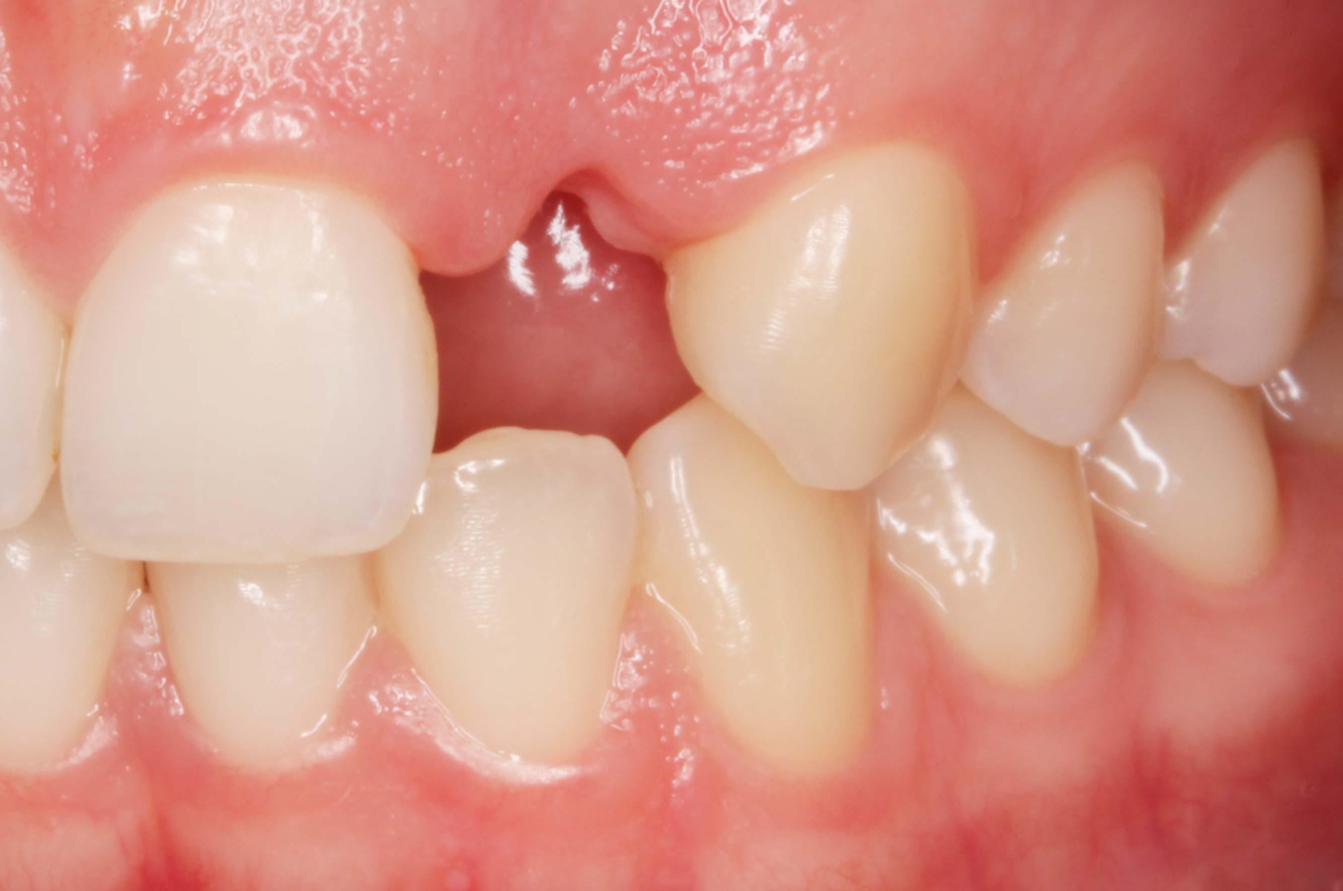 ausencia diente superior