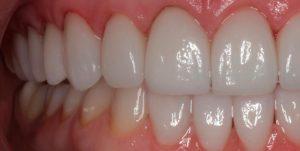 carillas dentista
