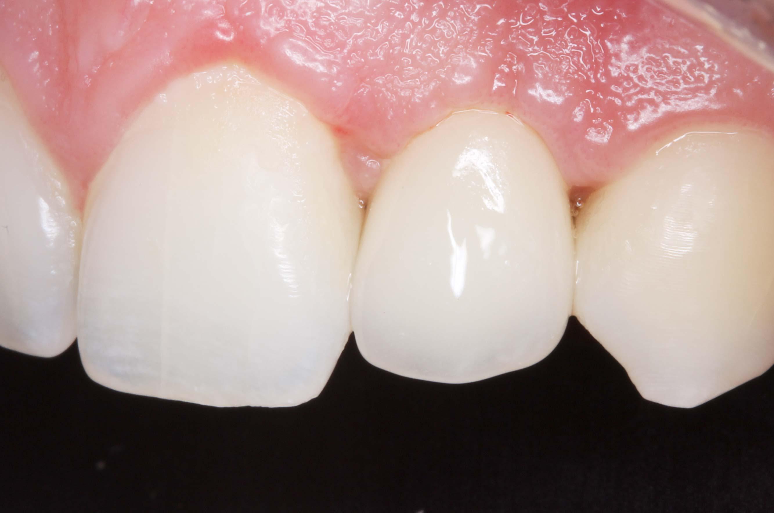 diente colocado dentista