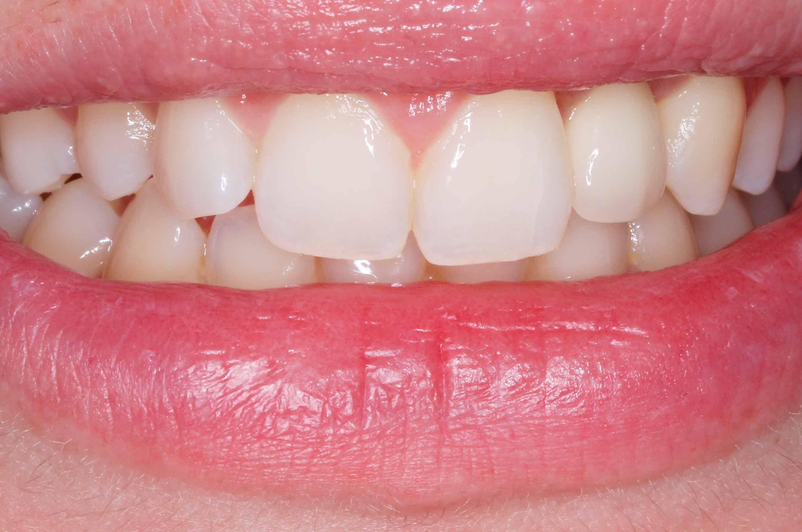 dientes leon