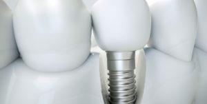 implantes dentales leon