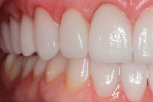 leon carillas dentista