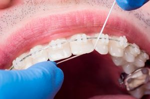 leon ortodoncia