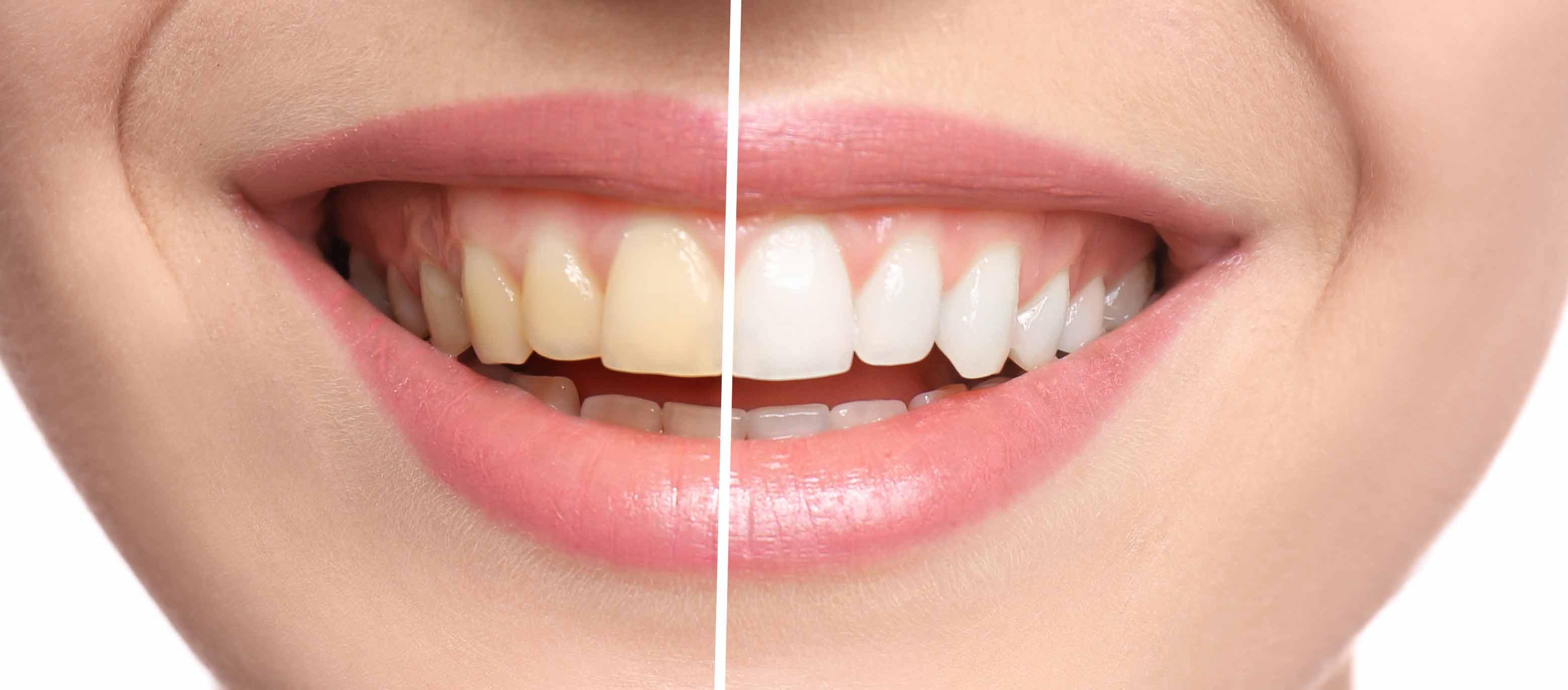 blaqueamiento dental leon