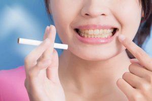 fumadores encias gingivitis