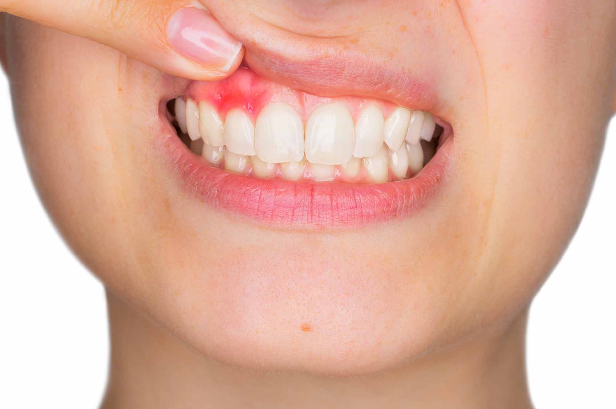 periodontitis leon